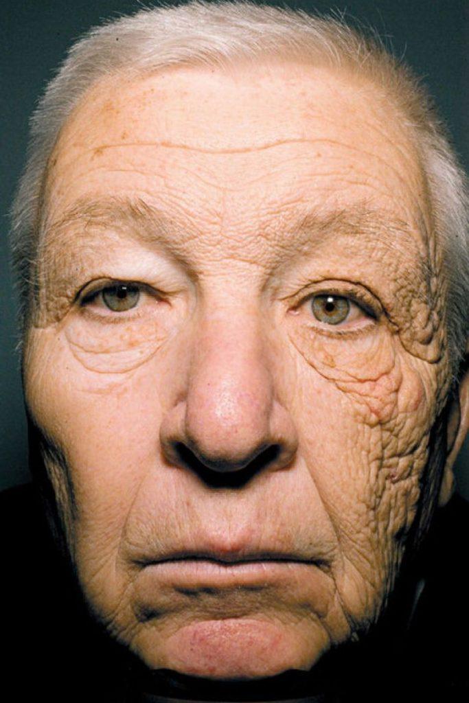 camionero con piel afectada por los efectos del sol